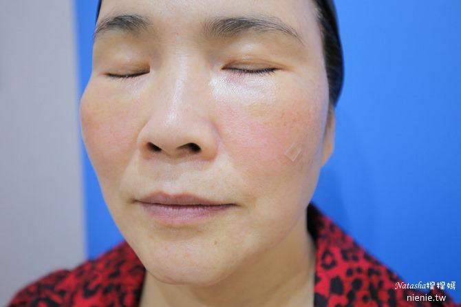 醫美推薦│Sculptra舒顏萃聚左旋乳酸~母親節送給媽媽一張回復青春的門票刺激膠原蛋白100