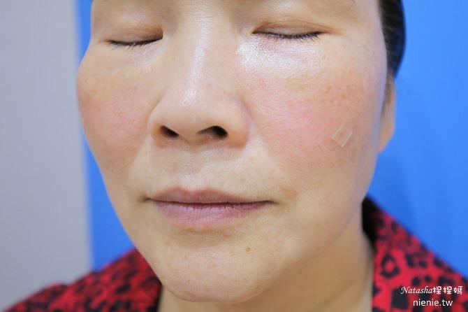 醫美推薦│Sculptra舒顏萃聚左旋乳酸~母親節送給媽媽一張回復青春的門票刺激膠原蛋白101