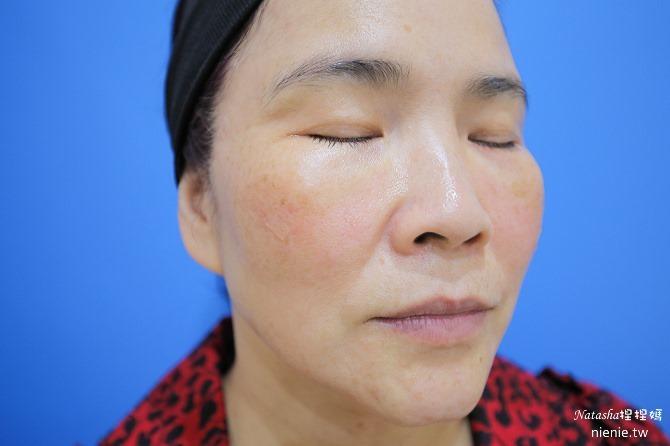 醫美推薦│Sculptra舒顏萃聚左旋乳酸~母親節送給媽媽一張回復青春的門票刺激膠原蛋白102