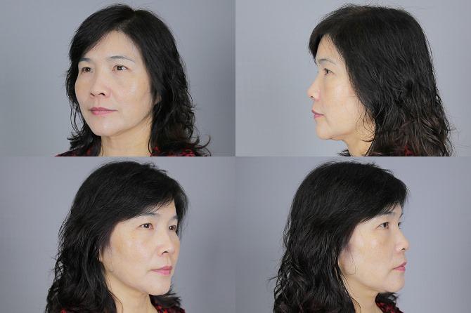 醫美推薦│Sculptra舒顏萃聚左旋乳酸~母親節送給媽媽一張回復青春的門票刺激膠原蛋白103