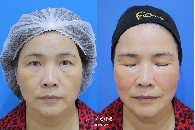醫美推薦│Sculptra舒顏萃聚左旋乳酸~母親節送給媽媽一張回復青春的門票刺激膠原蛋白114