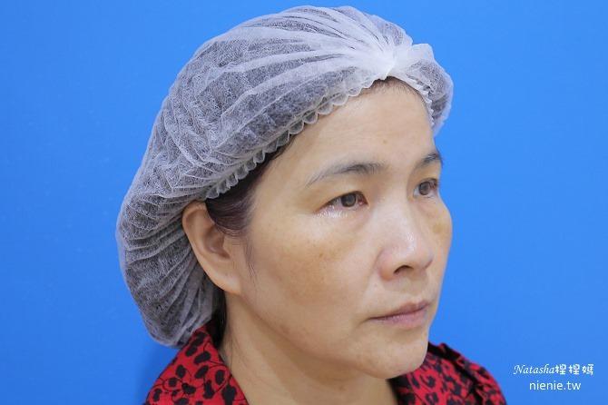 醫美推薦│Sculptra舒顏萃聚左旋乳酸~母親節送給媽媽一張回復青春的門票刺激膠原蛋白21