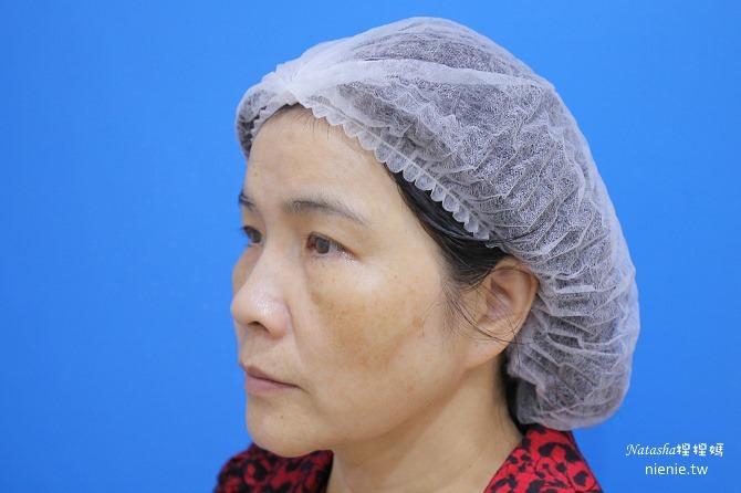 醫美推薦│Sculptra舒顏萃聚左旋乳酸~母親節送給媽媽一張回復青春的門票刺激膠原蛋白23