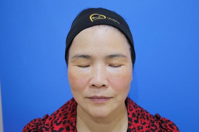 醫美推薦│Sculptra舒顏萃聚左旋乳酸~母親節送給媽媽一張回復青春的門票刺激膠原蛋白94