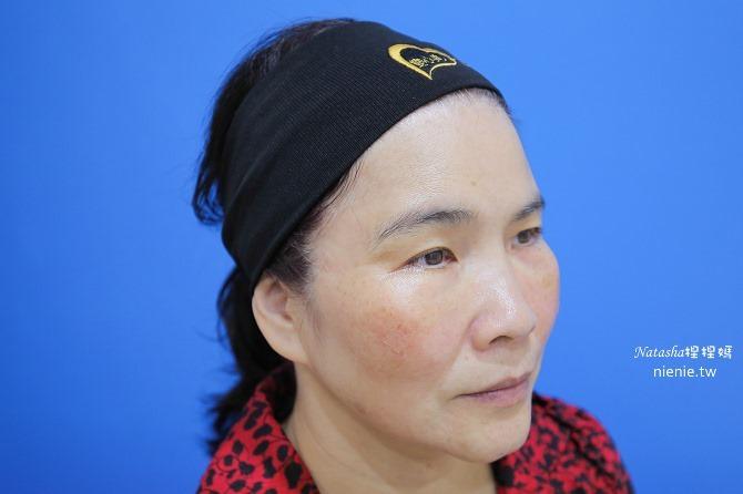 醫美推薦│Sculptra舒顏萃聚左旋乳酸~母親節送給媽媽一張回復青春的門票刺激膠原蛋白95