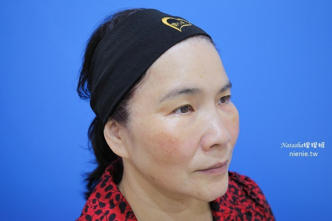 醫美推薦│Sculptra舒顏萃聚左旋乳酸~母親節送給媽媽一張回復青春的門票刺激膠原蛋白96