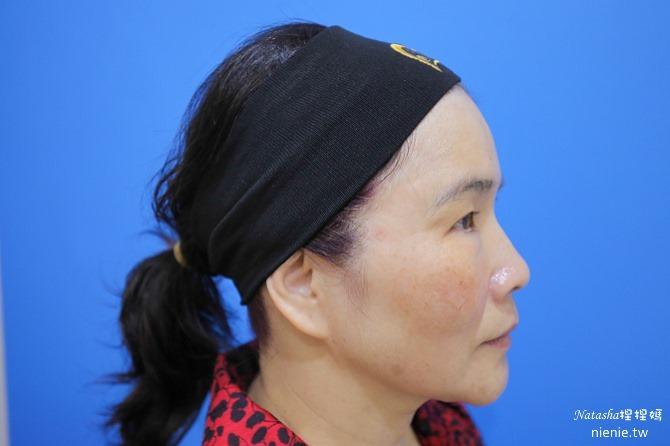 醫美推薦│Sculptra舒顏萃聚左旋乳酸~母親節送給媽媽一張回復青春的門票刺激膠原蛋白97