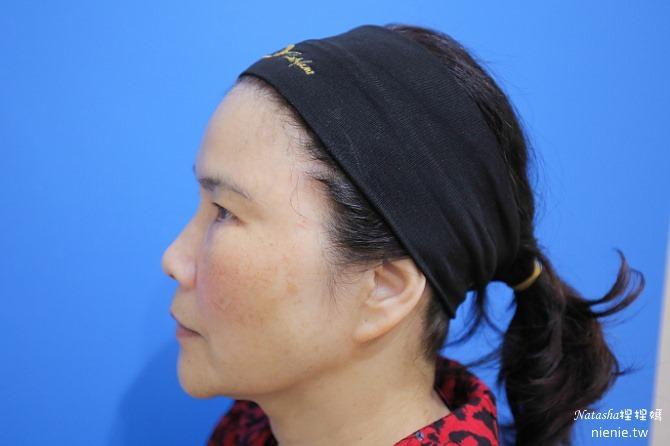 醫美推薦│Sculptra舒顏萃聚左旋乳酸~母親節送給媽媽一張回復青春的門票刺激膠原蛋白99